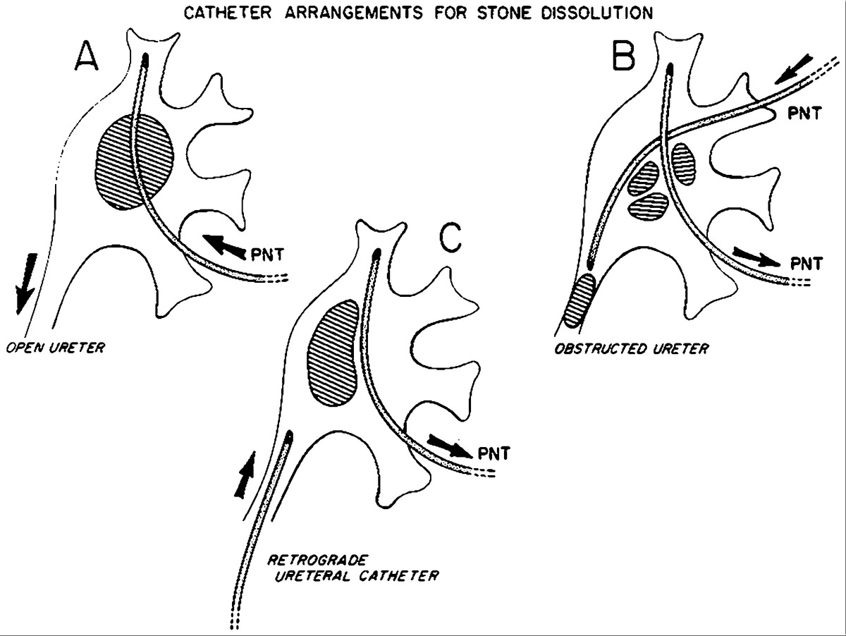 Renal Stone Dissolution Via Percutaneous Nephrostomy