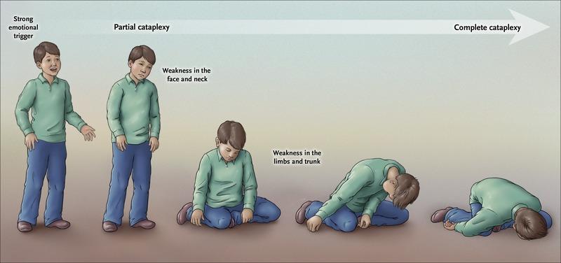 Image result for narcolepsy