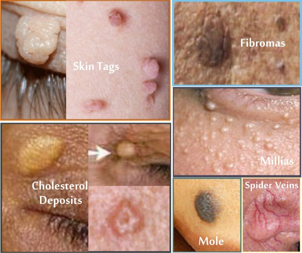 Skin Tags &...Pictures Feb 2016.
