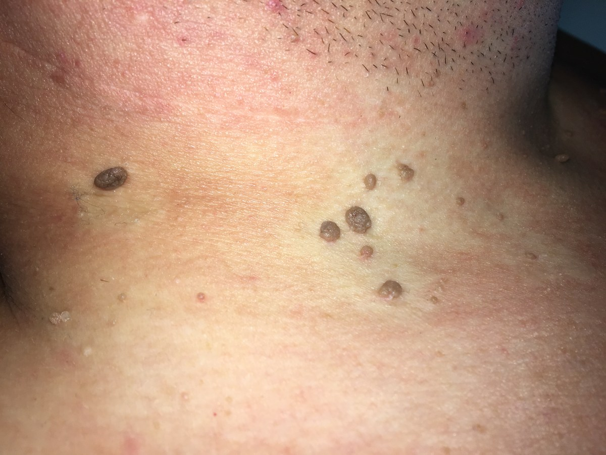 What Are The Causes Of Skin Tags Around The Neck Part 1