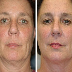 Facelift, double Chin & Fat Reduction Nell Toronto