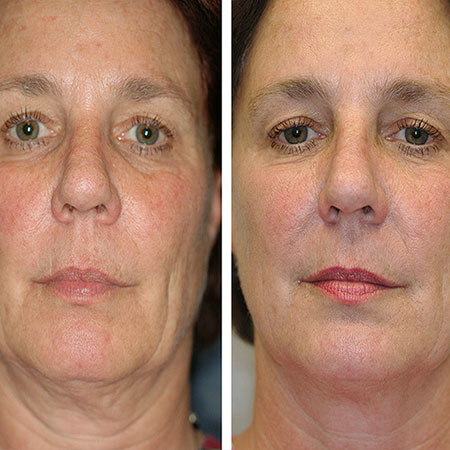 Facelift & Fat Removal by HIFU | Nell Laser Clinic