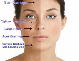 Nell Laser Toronto Skin Rejuvenation