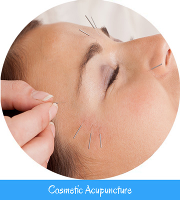 Cosmetic Acupuncture Nell Toronto