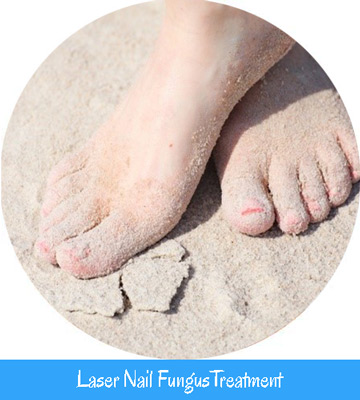 Laser Nail Fungus Treatment Nell Toronto