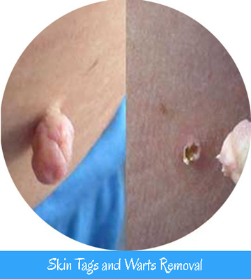 Skin Tags & Warts Removal Nell Laser