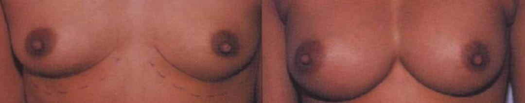 αύξηση στήθους,σιλικόνη