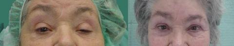 βλεφαρόπτωση, αποκατάσταση βλεφαρόπτωσης,βλεφαροπλαστική πριν και μετά