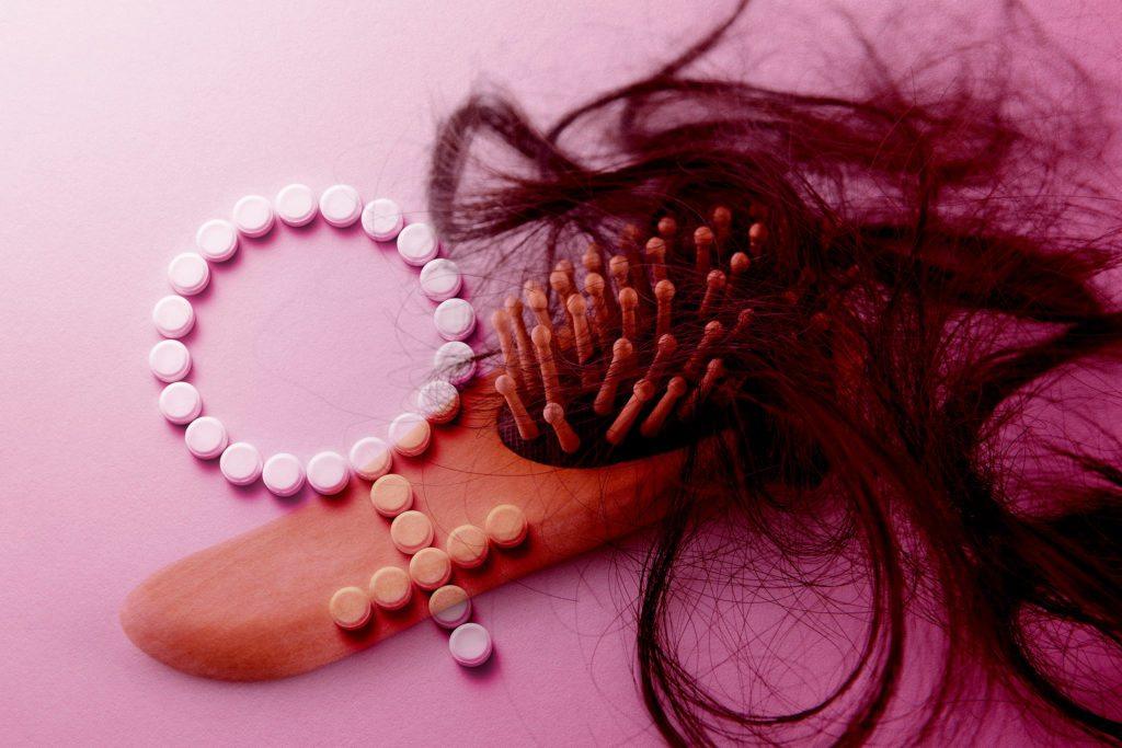 Can Birth Control Cause Hair Loss Female Hair Loss Neograft Fue