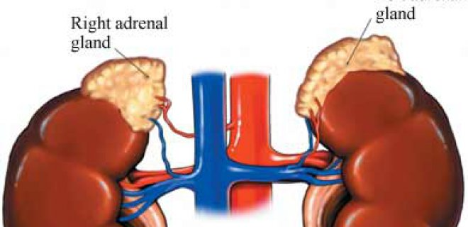 Adrenal Insufficiency (Addison's Disease) Was Diagnosed With