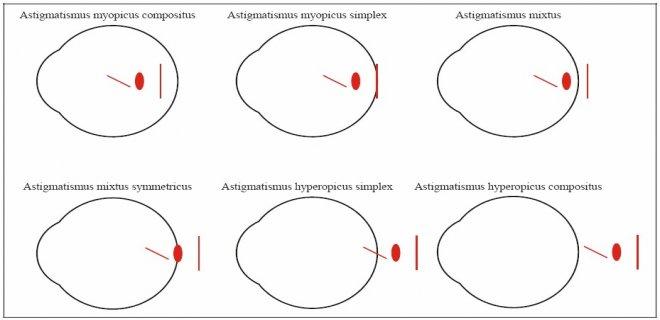 astigmat-turleri-.jpg