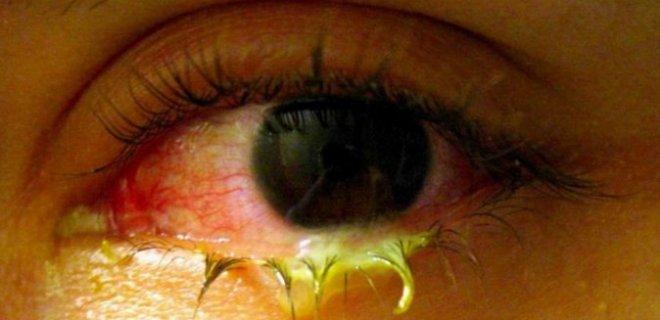 bakteriyel konjonktivit - What Is Bacterial Conjunctivitis?