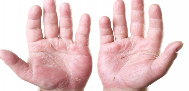 behcet hastaligi 001 - Symptoms Of Behcet's Disease