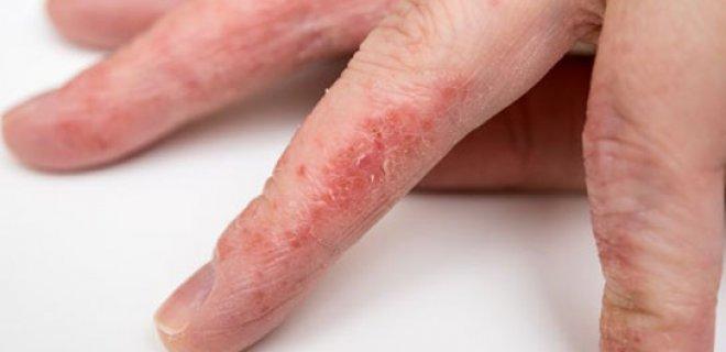 Symptoms Of Food Allergy