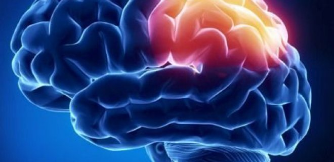 beyin felci - Cerebral vascular disease what is it and what are the symptoms