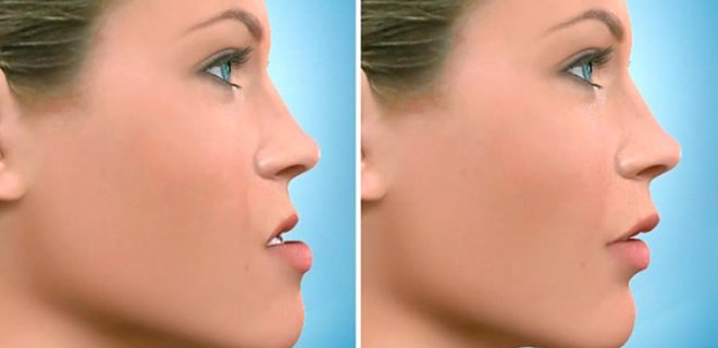 cene kucultme - How Jaw Surgery Is Performed?