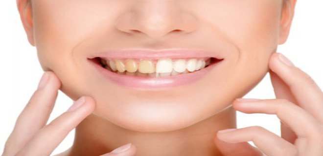dis beyazlatma (bleaching) 002 - Tooth Whitening (Bleaching)