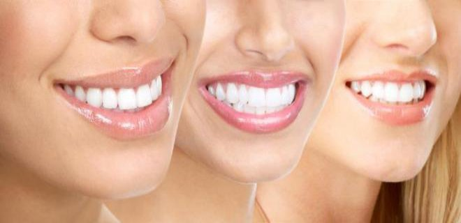 dis beyazlatma (bleaching) - Tooth Whitening (Bleaching)