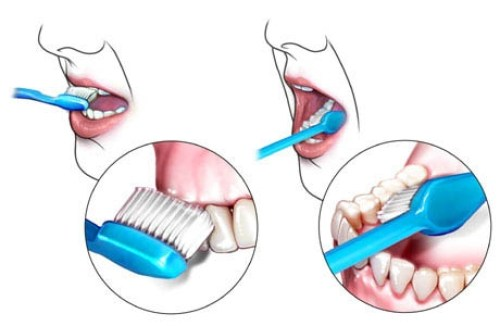 dis fircalanmasi gereken yerlerr - 5 Error Made While Brushing Your Teeth