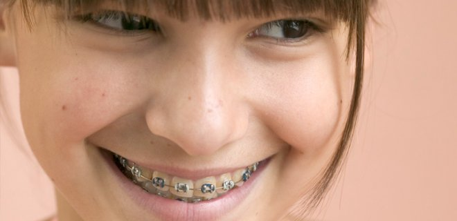 dis teli 001 - You Need To Know About Braces