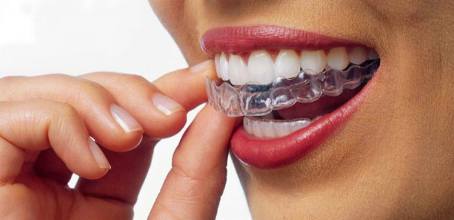 dis teli cesitleri nelerdir 001 - What Are The Types Of Braces?