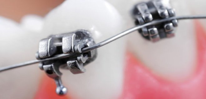 dis teli cesitleri nelerdir 004 - What Are The Types Of Braces?