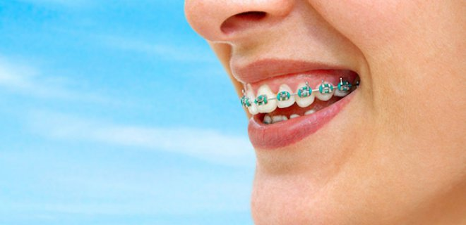 dis teli cesitleri nelerdir 005 - What Are The Types Of Braces?