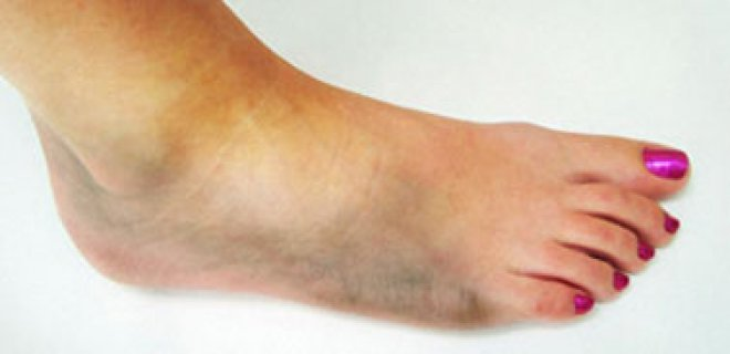 diyabetik ayak yarasi bulgulari - What is Diabetic foot ulcer and how is it treated?