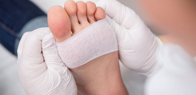diyabetik ayak yarasi tedavisi - What is Diabetic foot ulcer and how is it treated?