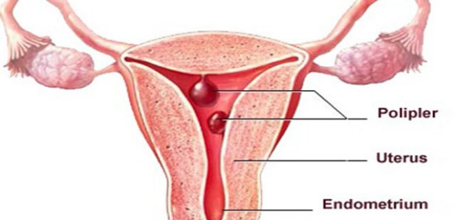 What Is A Polyp?What Is Endometrial Polyp?
