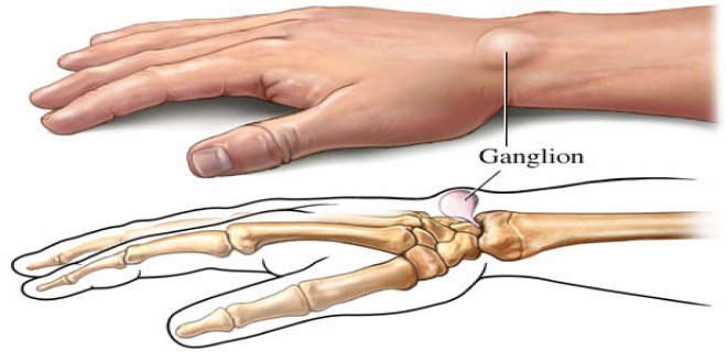ganglion kisti olusumu - Ganglion cyst what is it and how is it treated?