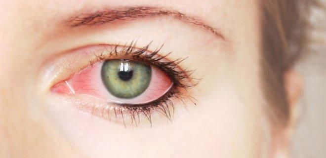 goz kurulugu belirtileri 006 - What Is Dry Eye Syndrome?