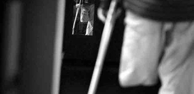 hayalet bacak sendromu - 7 The World's Most Interesting Psychological Discomfort