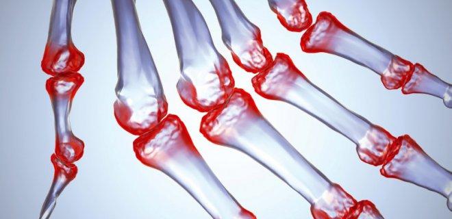 kemik iltihabi bulgulari - Osteomyelitis, what is it and how is it treated?