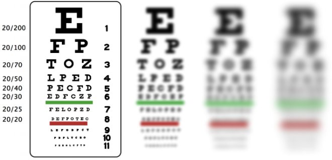 miyop cesitleri - What is myopia and how does it occur?