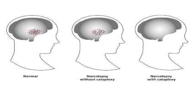 What About Narcolepsy
