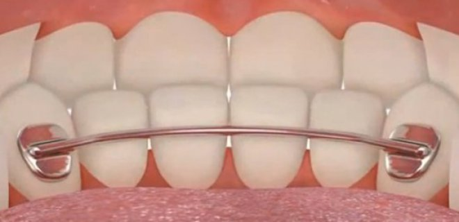 ortodonti tedavi asamalari 007 - Orthodontic Treatment Stages
