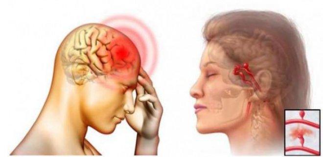 serebral damar tikanikligi - Cerebral vascular disease what is it and what are the symptoms
