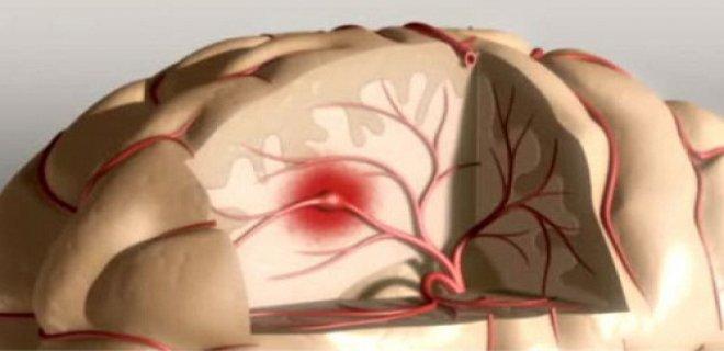 serebrovaskuler hastalik teshisi ve tedavi yontemleri 002 - Cerebrovascular disease