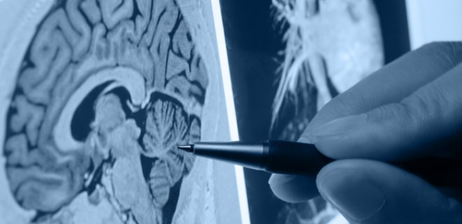 serebrovaskuler hastalik teshisi ve tedavi yontemleri 005 - Cerebrovascular disease