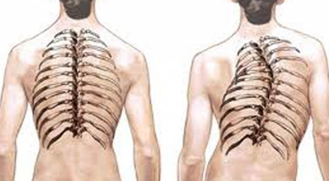 scoliosis - curvature of the spine disease