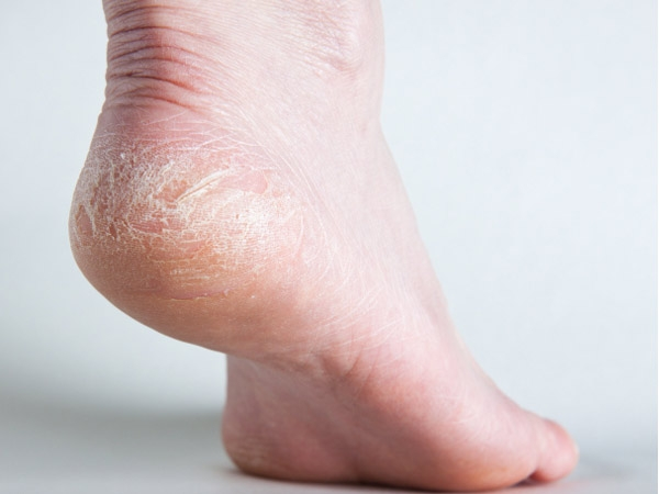 Causes and heel fissures