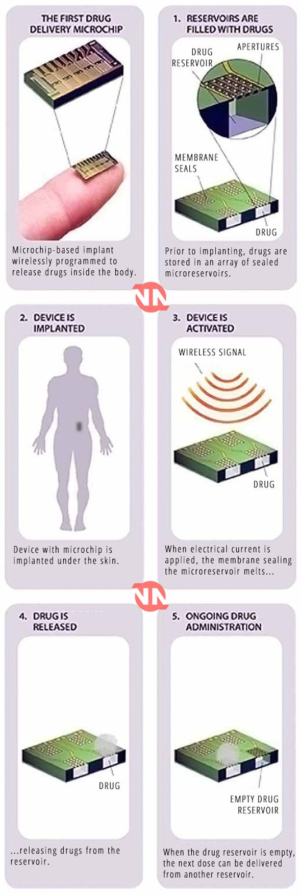 the new microchips will be remotely accessed and controlled by a third party
