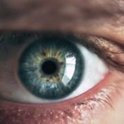 tipologie cataratta - Neovision Cliniche Oculistiche