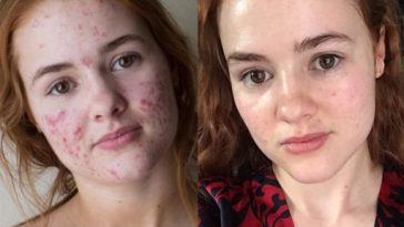 She tells her fight against acne on Instagram, thousands of people follow her