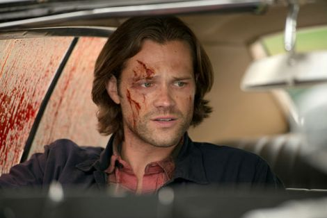 The Winchester's shed a lot of blood and the Impala is stained with most of it [Source: Diyah Pera /The CW]