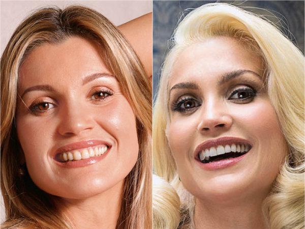 10 Famosos Brasileiros Que Mudaram O Sorriso Com Lentes De