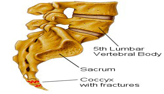 Coccyx Injury