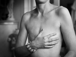 mastectomy myths- Netmarkers