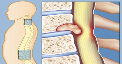 spinal-tumor-Netmarkers